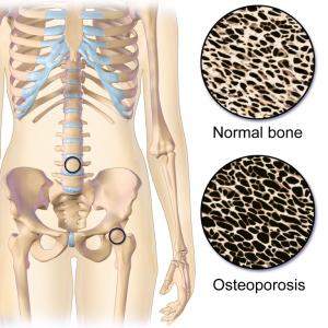 Osteoperose 300x300 - De Top 10 Meest Populaire Voedingssupplementen En Hun Eigenschappen!